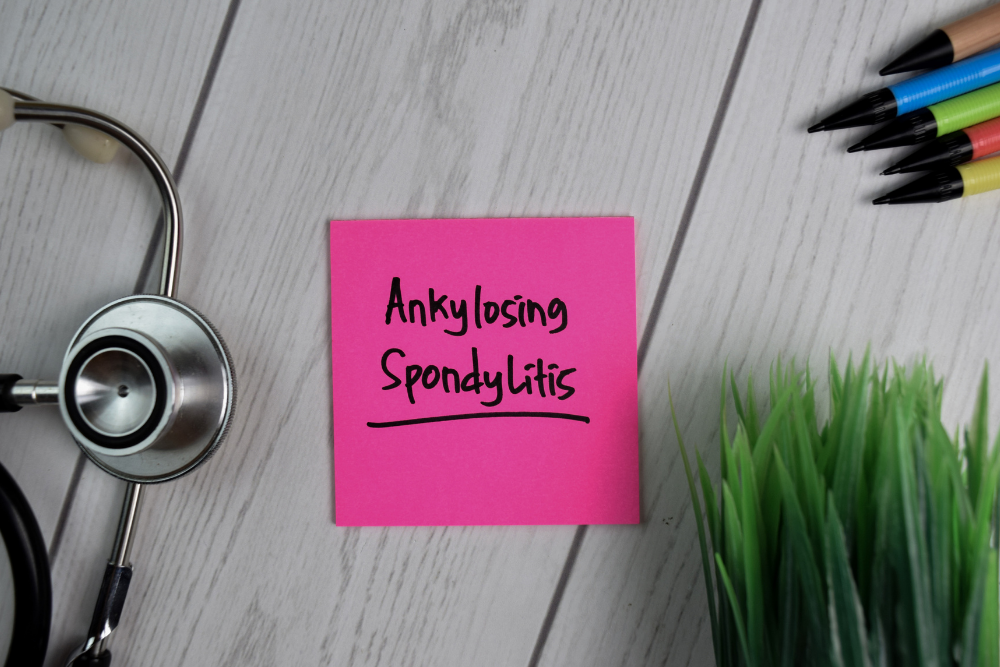 What to Know If You Were Denied Social Security Disability for Ankylosing Spondylitis